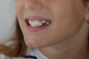 inizio pre-terapia sorriso CA