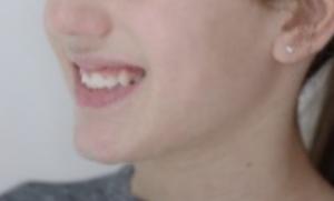 fine pre-terapia sorriso CA
