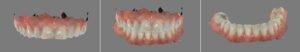 Foto 1 - Scansioni intraorali delle arcate dentali
