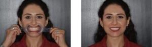 Foto 2 - Fotografie pre-trattamento